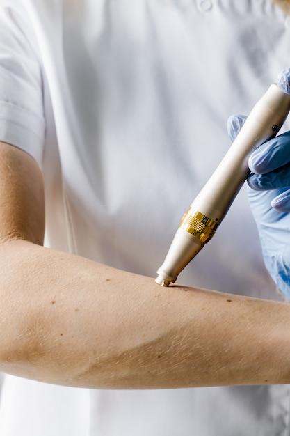 Goldenes dermapen zur mesotherapie an den händen der kosmetikerin in blauen handschuhen. kosmetikprodukt. Premium Fotos