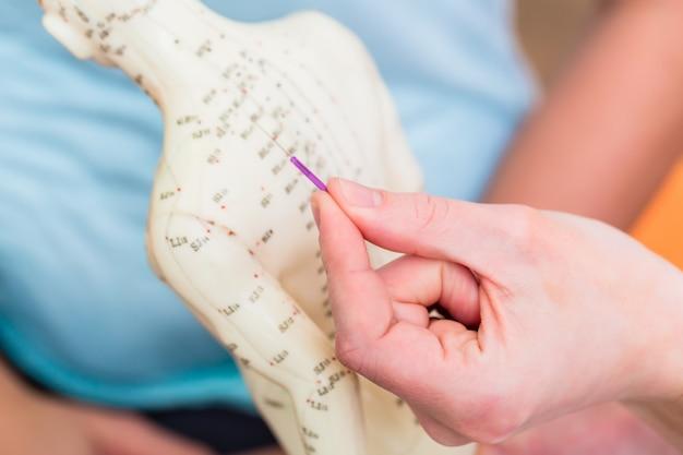 Heilpraktiker, der akupunktur erklärt Premium Fotos