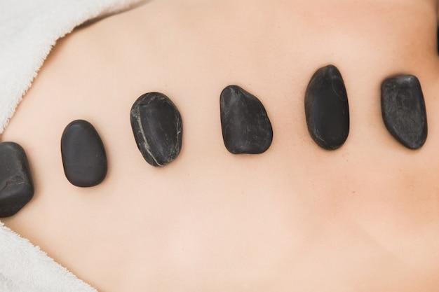 Heiße und kalte steine massage im spa für rückenschmerzen relief und entspannung Premium Fotos