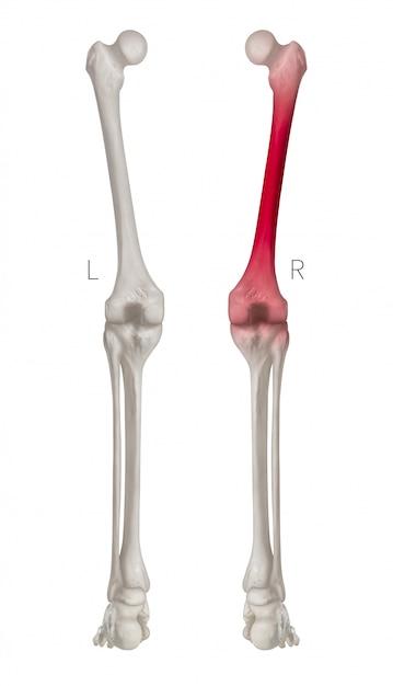 Hintere ansicht des menschlichen beinknochens mit roten höhepunkten in den oberschenkelknochenschmerz, lokalisiert auf weißem hintergrund Premium Fotos