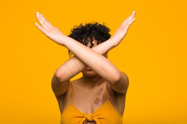 Junge afroamerikanerfrau mit dem hautgeburtszeichen, das zwei arme gekreuzt, ablehnungskonzept hält. Premium Fotos