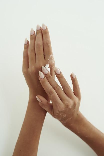Junge frau verteilt handcreme auf ihren händen. das konzept der hautfeuchtigkeit, handpflege und faltenprävention. Premium Fotos