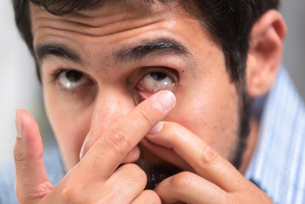 Junger mann, der oben kontaktlinse in sein linkes auge, abschluss einsetzt Premium Fotos