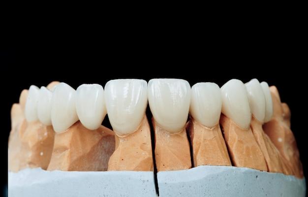Keramikzähne mit dem implantat auf einem gipsmodell Premium Fotos