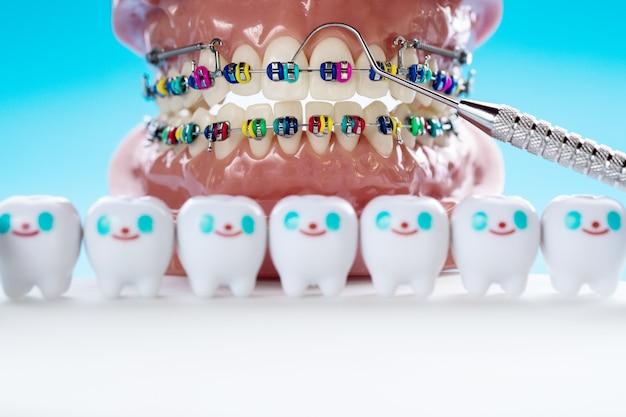 Kieferorthopädisches modell und zahnarztwerkzeug - demonstrationszahnmodell für verschiedene kieferorthopädische brackets oder brackets Premium Fotos