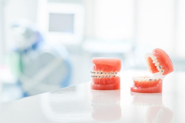Kieferorthopädisches modell und zahnarztwerkzeug - demonstrationszahnmodell für verschiedene kieferorthopädische brackets oder brackets. Premium Fotos