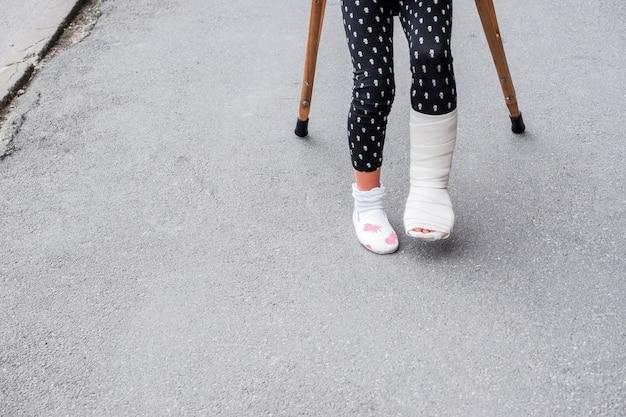 Kind mit gebrochenem bein ist auf krücken auf der straße. konzeptionelle foto zeigt ein kind mit einem gebrochenen bein an einem feiertag, in den schulferien. mädchen in füßen verletzt hat bandage mit krücken auf asphalt Premium Fotos