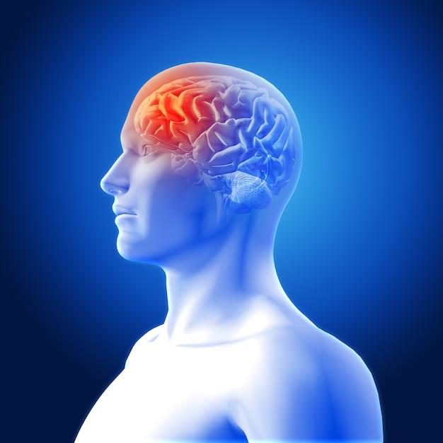 Kopfschmerzen darstellung Kostenlose Fotos