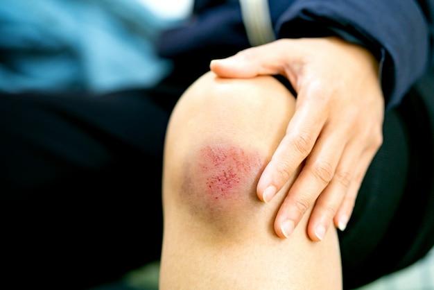 Kratzwunde auf weiblichem knienahaufnahme-, gesundheitswesen- und medizinkonzept Premium Fotos