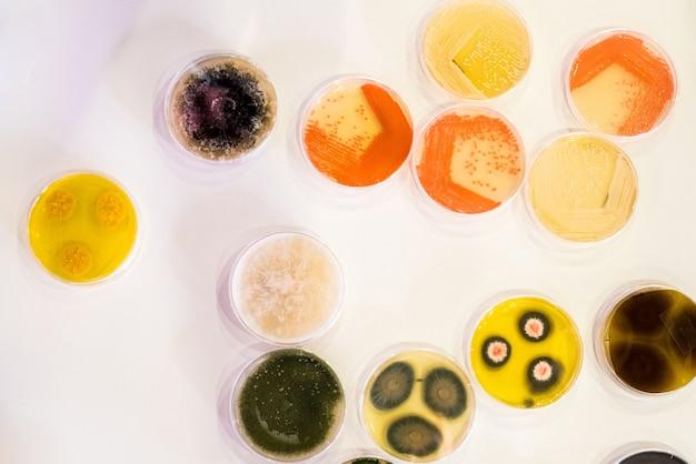 Kultur von bakterien in der petrischale Premium Fotos