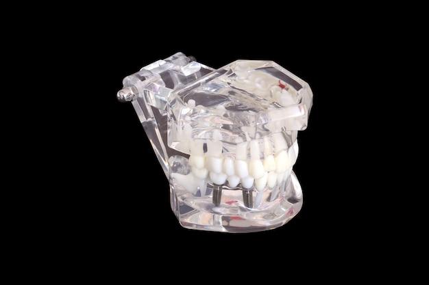 Lokalisierte zahnmedizinische zahnimplantate in einer form eines menschlichen kiefermodells auf schwarzem hintergrund mit beschneidungspfad Premium Fotos