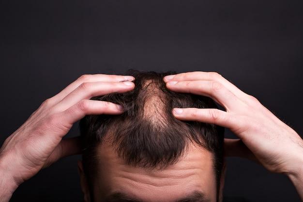 Männer mit glatze auf einer schwarzen wand nahaufnahme. Premium Fotos