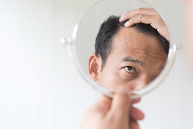 Männer sind besorgt über haarausfall. Premium Fotos