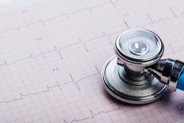 Metallstethoskop auf kardiogramm Premium Fotos