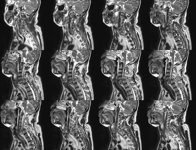 Mri von cervical spine history: ein 57-jähriger mann, bei dem in der vergangenheit ein fahrzeugunfall stattgefunden hat Premium Fotos