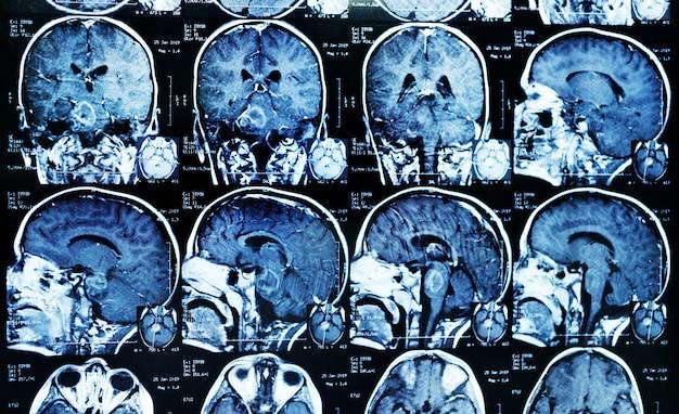 Mrt (magnetresonanzbild) eines patienten mit einem tumor im hirnstamm. neurochirurgie, krebs, chirurgie. Premium Fotos