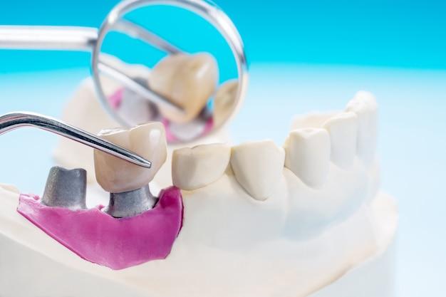 Nah- / implantatprothetik oder prothetische / zahnkronen- und brückenimplantat-zahnheilkunde und modell-express-fix-restauration. Premium Fotos