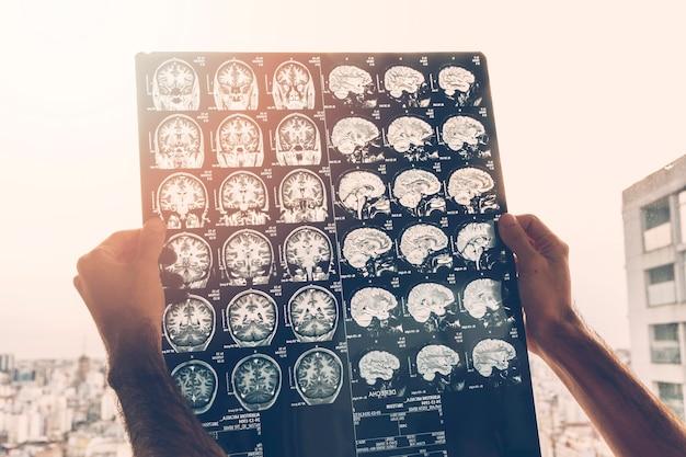 Nahaufnahme der Hand eines männlichen Doktors, die Magnetresonanzbild des Gehirns betrachtet Kostenlose Fotos