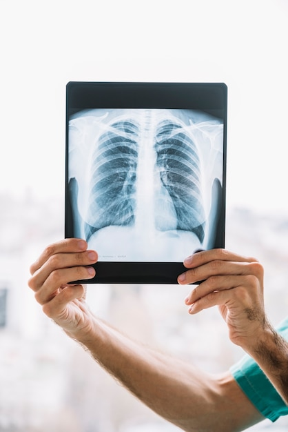 Nahaufnahme einer männlichen doktorhand, die thoraxröntgenstrahl hält Kostenlose Fotos