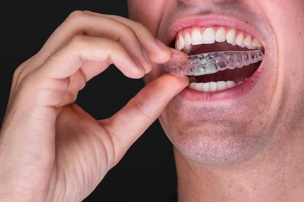 Nahaufnahmemann unter verwendung des zahnschutzes Kostenlose Fotos