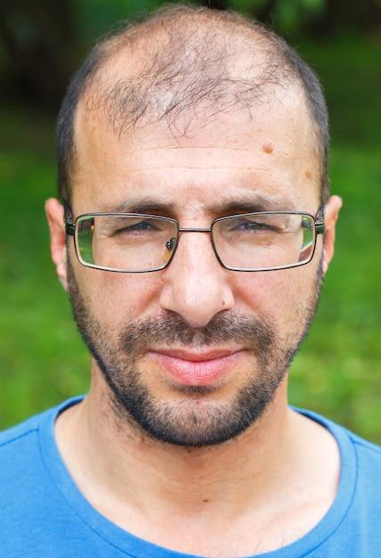 Porträt des jungen mannes mit schlechtem sehvermögen und haarausfall. Premium Fotos