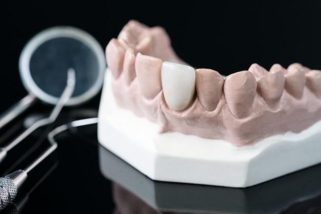 Prothetiker und zahnarztwerkzeug - demonstrationszahnmodell von prothetikvarianten Premium Fotos