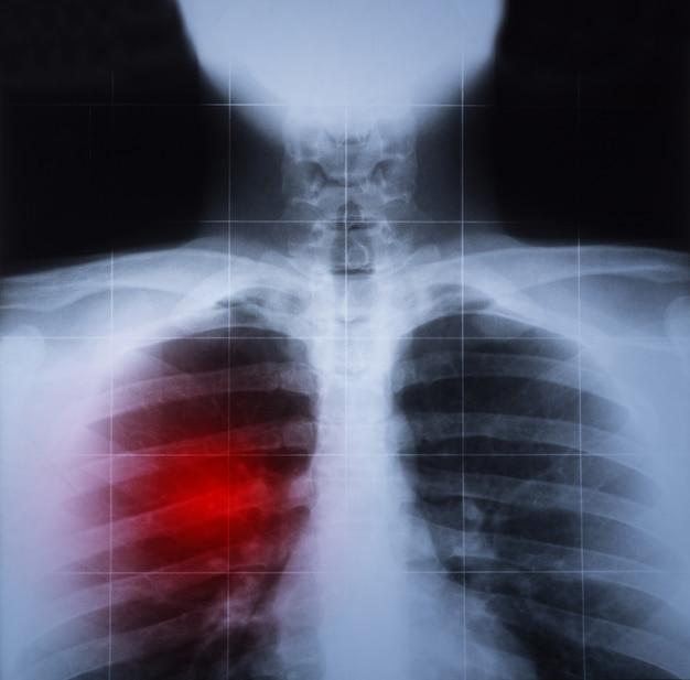 Röntgenbild der brust- und lungenerkrankung rot hervorgehoben Premium Fotos