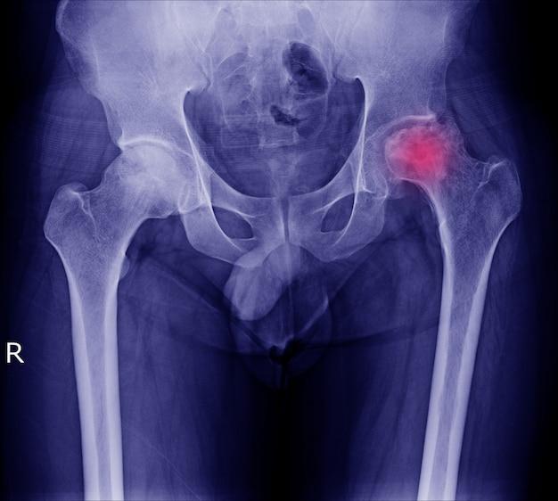 Röntgenbild der schmerzlichen hüfte in linkem hüftgelenk des anwesenden bruches des mannes an der roten bereichsmarkierung. Premium Fotos