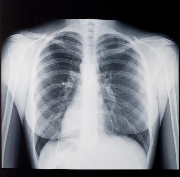 Röntgenstrahl der lunge der frau, vorderansicht. Premium Fotos