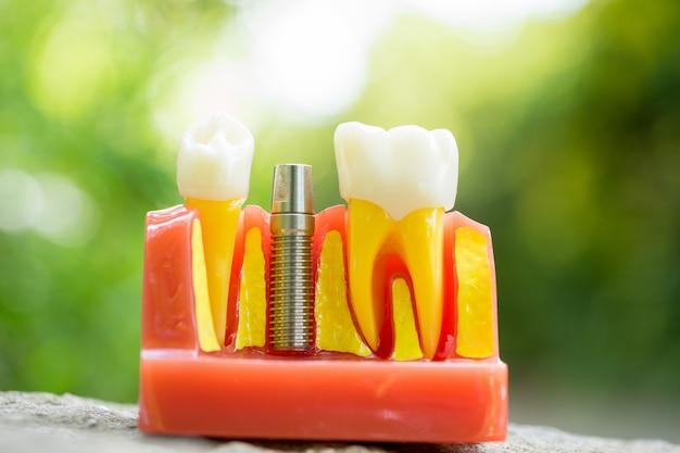 Satz ausrüstungswerkzeuge des zahnarztes, gebiss, das implantat zeigt Premium Fotos