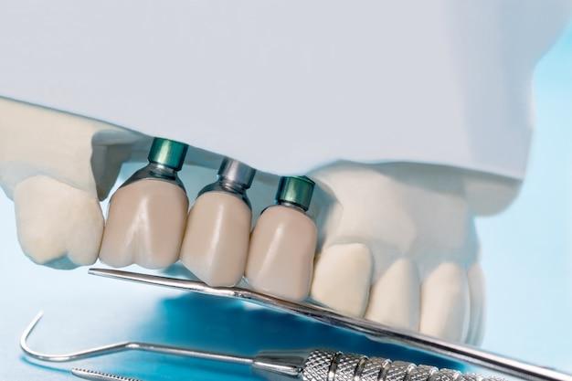 Schließen sie herauf implantatmodellzahnstütze-verlegenheitsbrückenimplantat und -krone. Premium Fotos