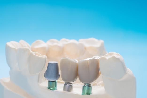 Schließen sie herauf implantatmodellzahnstützfix-brückenimplantat und -krone. Premium Fotos