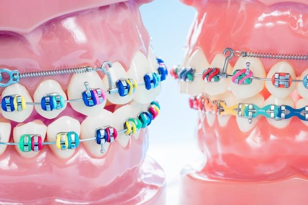 Schließen sie zahnarztwerkzeuge und kieferorthopädisches modell. Premium Fotos
