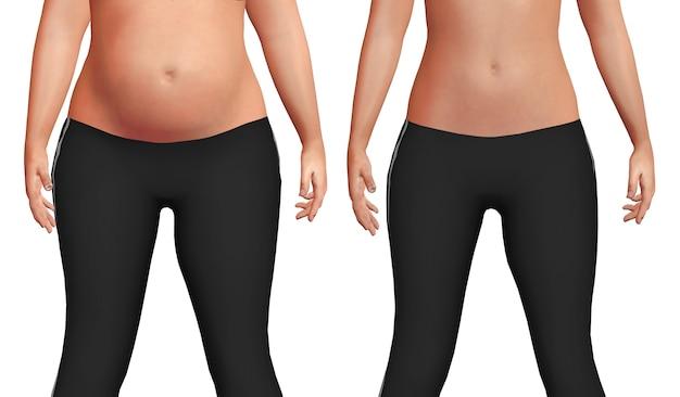 Weiblicher bauch vorher nach dem gewichtsverlustprozeß mit verlust des körperfettweißhintergrundes. Premium Fotos