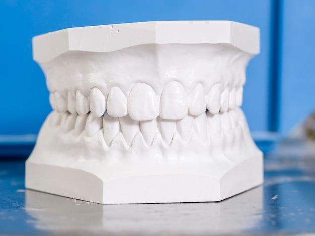 Weiße form zahnmedizinisch vom gips Premium Fotos