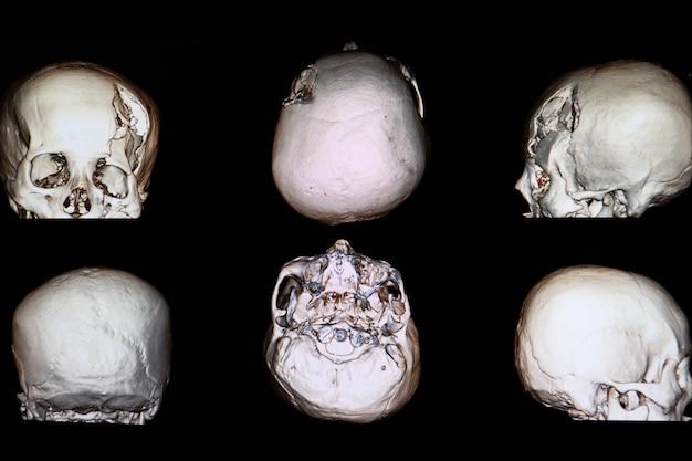 Wiedergabebild ct 3d eines patienten mit schwerer schädelkrisenfraktur Premium Fotos