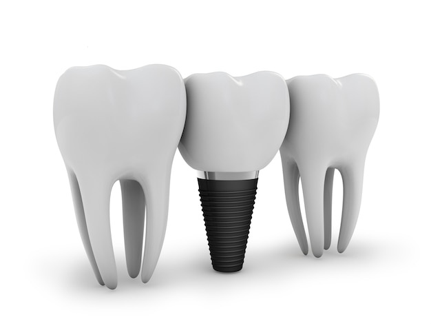 Zahnimplantat Premium Fotos