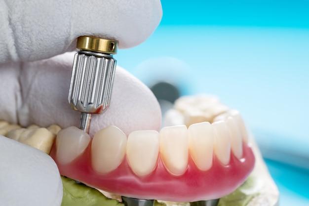 Zahnimplantate unterstützten overdenture. Premium Fotos