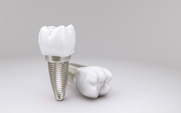 Zahnimplantatkonzept auf weiß Premium Fotos
