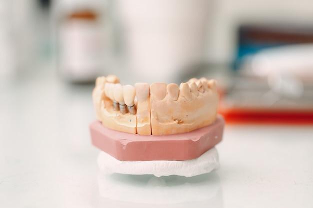 Zahnlayout des menschlichen kiefers mit zähnen und implantaten. Premium Fotos