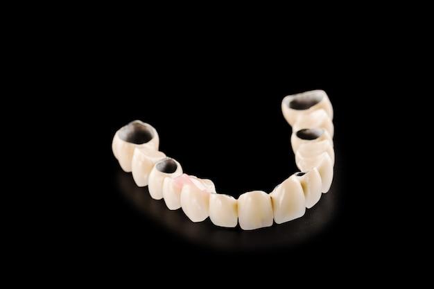 Zahnmedizinische keramische brücke auf getrenntem schwarzem hintergrund Premium Fotos