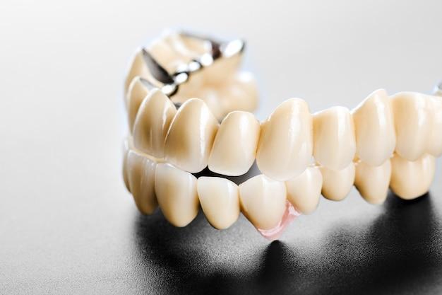 Zahnmedizinische keramische brücke auf getrenntem schwarzem Premium Fotos