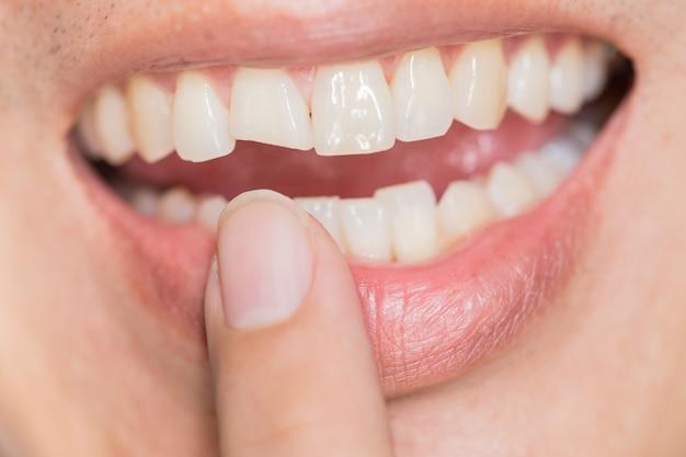 Zahnproblem mit hässlichem lächeln. zahnverletzungen oder zähne, die im mann brechen. trauma und nervenschaden des verletzten zahnes, bleibende zahnverletzung. Premium Fotos