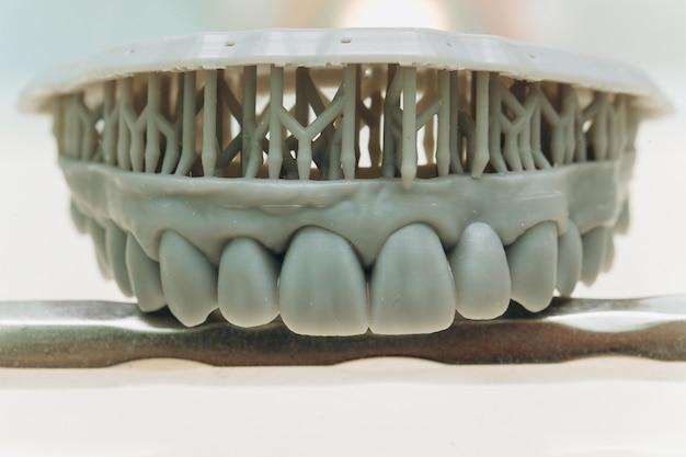 Zirkon-porzellan-zahnplatte im zahnarzt-speicher. zahngesundheitspflege Premium Fotos