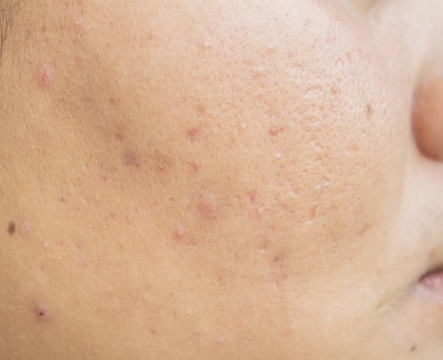 顔のニキビ跡、肌のトラブル、10代の毛穴 Premium写真
