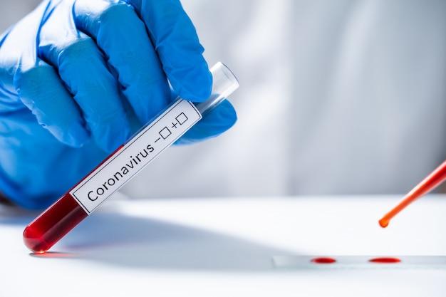 Лаборант проверяет кровь на новый коронавирус из китая 2019-нков Premium Фотографии