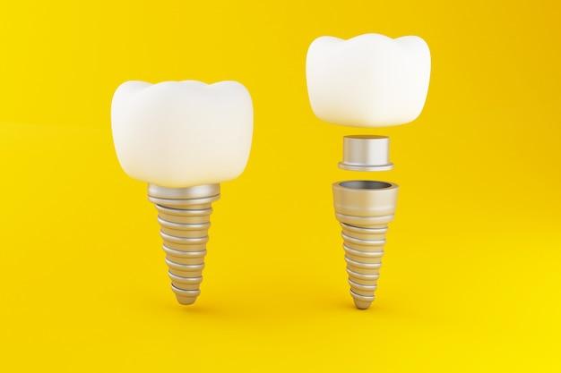 3d dental tooth implant. Premium Photo