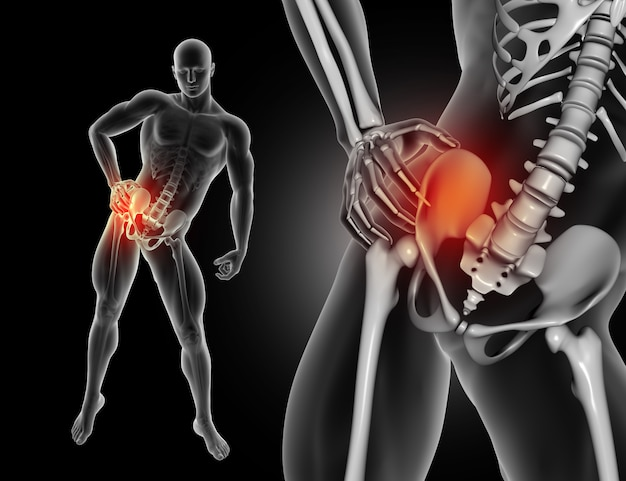 3D male figure holding hip in pain Free Photo