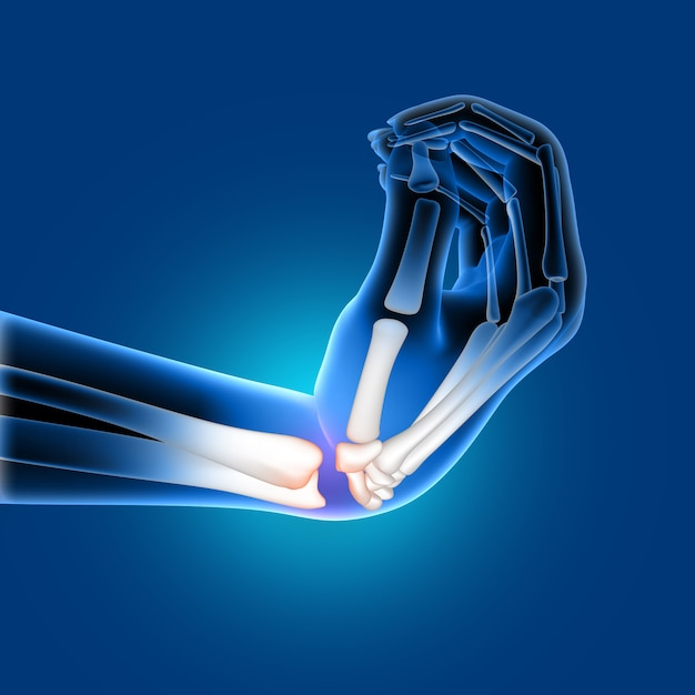 3d medical image of a painful bent wrist Free Photo