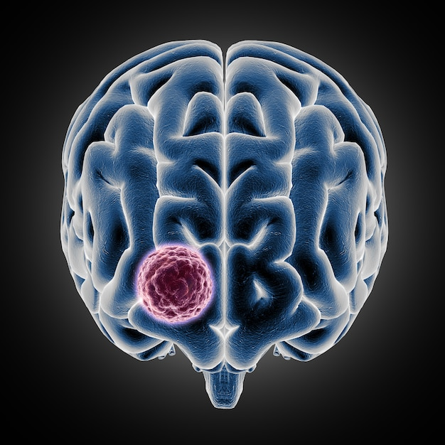 3d medical showing brain with tumor growing Free Photo